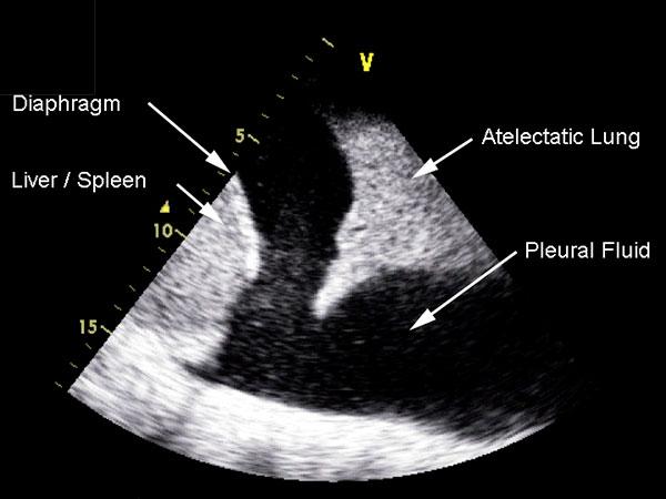 Figur 5: Pleuravæske rundt lungespissen.