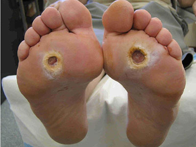 Bilde av fotsår