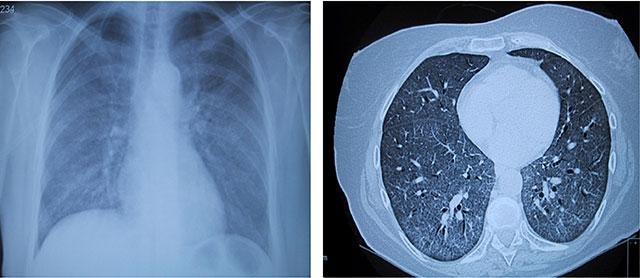 Figur 5:  Betydning av HIV-test i diagnostikk av pasienter med diffus parenkymatøs lungesykdom. 65 år gammel kvinne, tidligere frisk. I løpet av måneder utviklet økende dyspne, etterhvert respirasjonssvikt. Innlagt til utredning av bilaterale lungefortetninger. Røntgen thorax viser lungefortetninger, diffust sløret preg. HRCT: Generelt økt tetthet i lungeparenkymet med mattglasspreg. Videre utredning viste pneumocystis jirovecci infeksjon. HIV test var positiv.