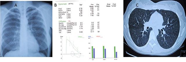 Figur 6: 31 år gml kvinne utredet for funksjonsdyspne av noen måneders varighet.  A.Normalt røntgen thorax.  B.Lungefunksjonsundersøkelser viste normal belgfunksjon bedømt ved spirometri, men redusert transferfaktor for CO (TLCO).  C.HRCT var patologisk  med utbredte centrilobulære noduli med mattglasspreg i begge lunger best forenlig med subakutt  hypersensitivitetspneumoni. Hadde positive presipiterende antistoffer for fugleantigener (IgG).