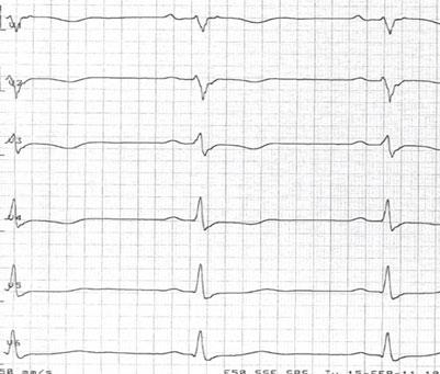 Figur 2 EKG fra en ARVC-pasient. Prekordiale avledninger V1-V4 viser typiske T-inversjoner.
