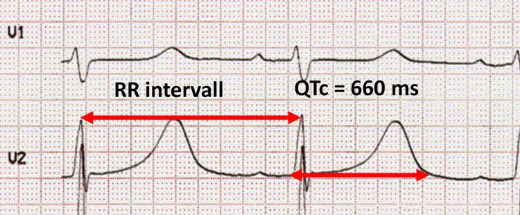 Figur 3. EKG fra en pasient med forlenget QT-tid.