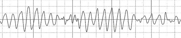 Figur 4, Torsade de pointes ventrikulær arytmi.