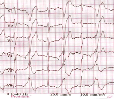 Figur 5, Bigemini ved arbeids-EKG. Typisk eksempel på ventrikulære ekstrasystoler i bigemini som opptrer ved fysisk belastning hos en pasient med CPVT.