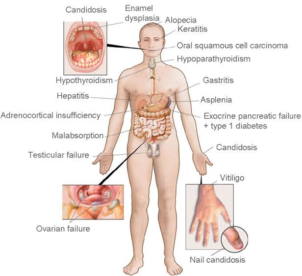 Figur 1. Homunculus med kliniske manifestasjoner
