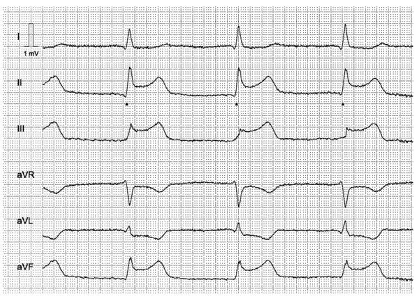 Figur 1. Typiske ST-elevasjoner hos pasient med akutt nedreveggsinfarkt.  EKG er tatt ca. en time etter smertedebut.
