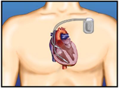 Holm.-Figur-2,-til-ICD-artikkel