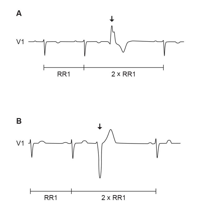 Figur 1. VES gjenkjennes i EKG som et prematurt QRS-kompleks uten forutgående P-bølge som er breddeforøket og har annen konfigurasjon enn supraventrikulære slag. VES etterfølges oftest av en pause. A) VES fra fokus i venstre ventrikkel, B) VES fra fokus i høyre ventrikkel (Ill. ved A. K. Stokke 2015).