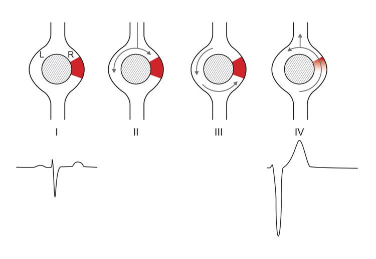 Figur 4. Reentrykretser betinget av forskjellig ledningshastighet. Område «R» i figuren har langsommere ledning enn område «L». Dermed er R refraktær lengre enn L. Når refraktærperioden er overstått, kan man imidlertid risikere at impulser som har passert gjennom område L, kan passere retrograd gjennom og dermed initiere en reentrykrets. (Ill. ved A. K. Stokke 2015).