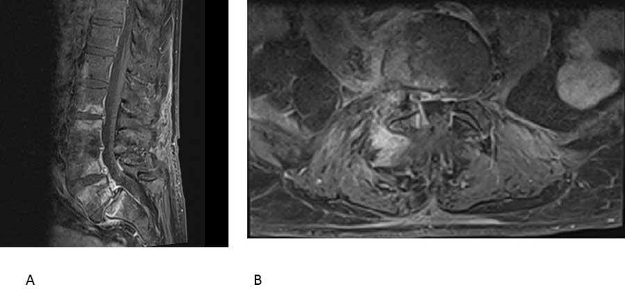 Figur 2. MR-bilde (T1-vektet) med kontrast av spondylodiskitt i lumbalcolumna. Sagittalsnitt (A) viser ødem (hvitt) i virvlene L2-S1 med mellomliggende skiver, og kraftig kontrastoppladning (hvitt) i skive L5/S1, samt både foran og bak columna. I aksialsnitt (B) ses ødem og kontrastoppløsning rundt fasettledd og i rygg- og psoasmuskulatur på høyre side. (Bilde ved Hans Einar Treidene, Radiologisk avdeling, OUS).