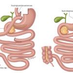 Figur 2. Illustrasjon av gastric bypass til venstre og gastrisk sleeve (ventrikkelreseksjon) til høyre. Fra Hofsø et al. Tidsskr Nor Legeforen 2011 (gjengitt med tillatelse fra Kari C. Toverud).