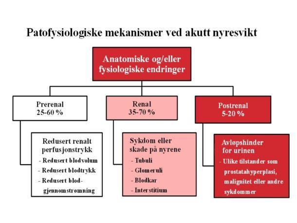 Figur 2. Inndeling av patofysiologiske mekanismer involvert i utviklingen av akutt nyresvikt.