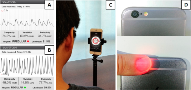 Figur 2. Eksempler på fotopletysmografi (PPG) (Cardiio Rhythm «app») fra pasient med atrieflimmer (A) og sinusrytme (B). Oppsett brukt for «ansiktsgjenkjenning» av atrieflimmer med PPG-signal (C). Samme teknologi kan og brukes for PPG-signal fra finger, ved hjelp av mobiltelefonens kamera (D). En rekke «apper» med slik funksjonalitet er allerede kommersielt tilgjengelige, men algoritmene som tolker signalene er svært ulike. Illustrasjon gjengis i henhold til Creative Commons Attribution Non-Commercial License, og i samråd med forfatterne [27].