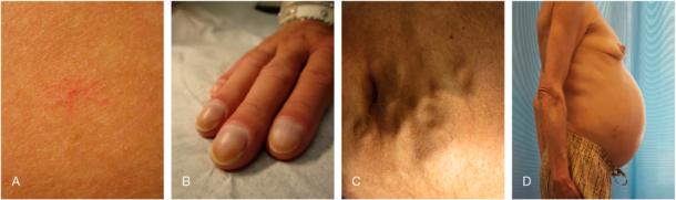 Figur 1. Kutane tegn som kan ses ved levercirrhose: Spider naevi (A), clubbing (B), caput medusae (C), ascites og avmagring (D). (Med tillatelse fra Fagbokforlaget fra: Indremedisin I & II, 2017)