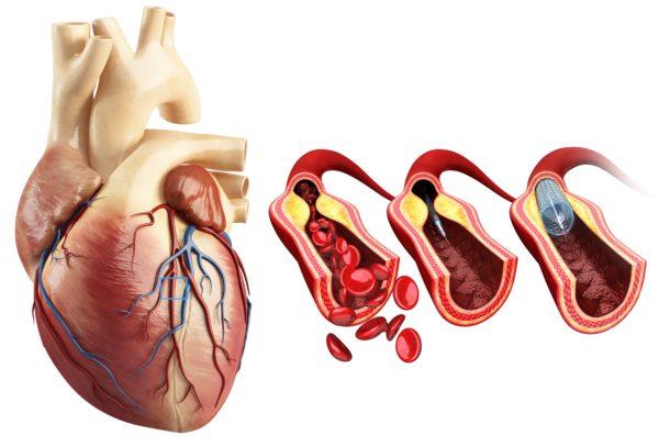 Medikamentell behandling og livsstilsråd etter hjerteinfarkt