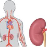 Figur 1: Fibromuskulær dysplasi (til venstre) kan i prinsippet affisere alle blodkar, men nyrearterier og halskar er predileksjonssteder. Aterosklerotisk nyrearteriestenose (til høyre) er ledd i generell aterosklerotisk sykdom og sitter ofte proksimalt i nyrearterien, til og med osteal.