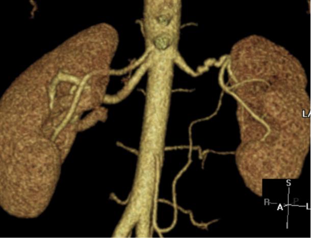 Figur 2: Rekonstruksjon fra CT-angiografi av fibromuskulær dysplasi. Typisk presentasjon med kaliberveksling i midtre og distale deler av nyrearterien. Klinikk for bildediagnostikk, St. Olavs hospital
